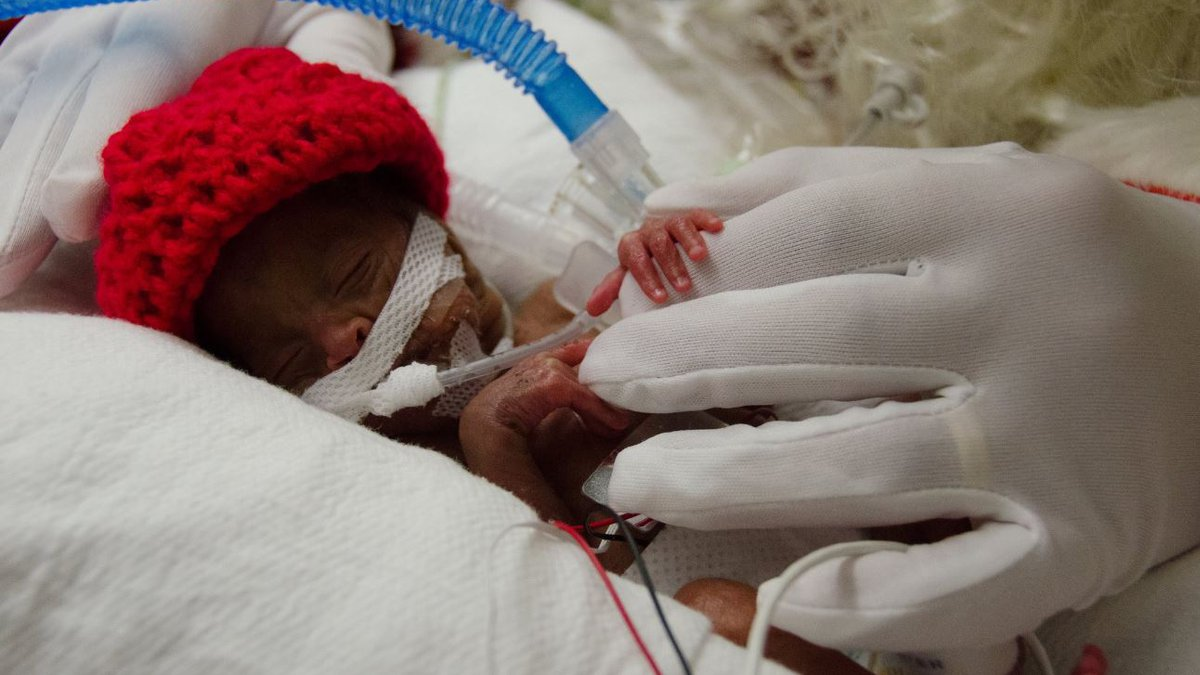 """This shot captures how small and precious NICU patients are,"""" the post read.  (Source:..."""