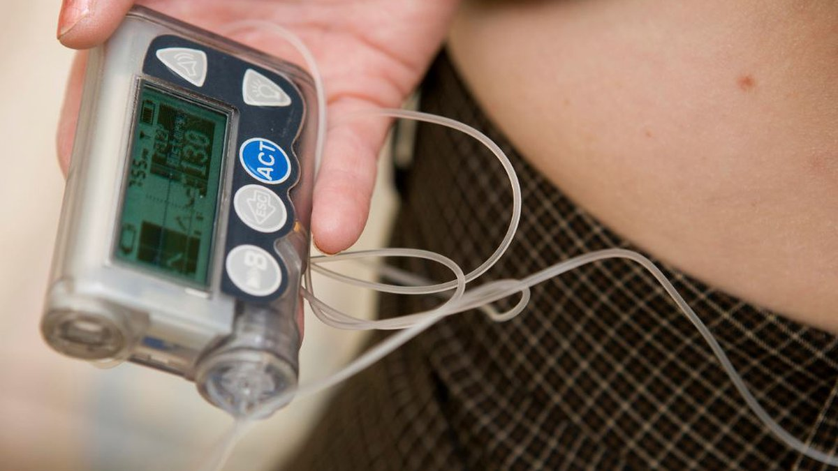 A diabetic patient using an insulin pump. In response to rising insulin costs, Virginia...