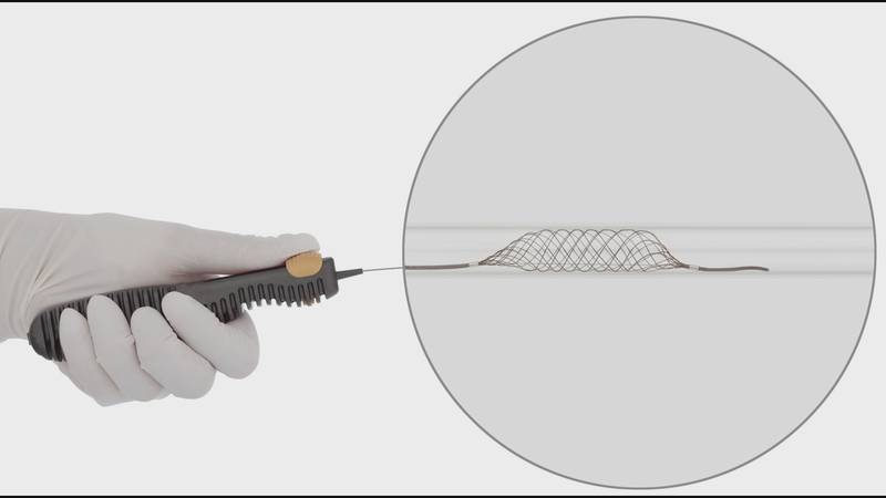 The Comaneci device, a new tool to treat brain aneurysms, minimizes the risk of stroke during...